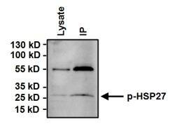 Phospho-HSP27 (Ser15) Antibody (PA1-016)