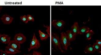 Phospho-ERK1/ERK2 (Thr202, Tyr204) Antibody (PA1-4607)