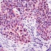 CDKN2A Antibody (PA5-32529)