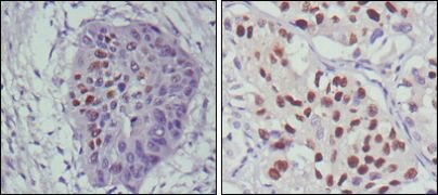 p53 Antibody (MA5-15510)