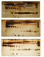 2D gels of unprocessed vs processed human serum