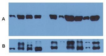 alpha Tubulin Antibody (MA1-19162)